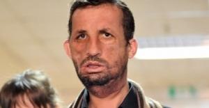 Yüz nakilli Uğur Acar'a 'cinayet' davası