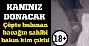 Adana'da bulunan kesik bacak bakın kime ait çıktı!