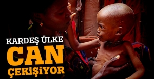 Kardeş Somali'de kolera sebebiyle ölenlerin sayısı 343'e yükseldi
