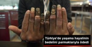 Türkiye'de Yaşama Hayalinin Bedelini Parmaklarıyla Ödedi