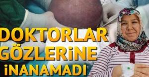 Karın ağrısı şikayetiyle hastaneye gitti... Doktorlar gözlerine inanamadı