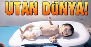Suriye'deki savaşın son kurbanı minik Seher
