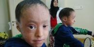 3 aylıken gözleri dikilen ikizlerin gözleri açıldı