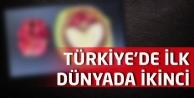 Türkiyede ilk, dünyada ikinci!