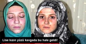Kız Öğrencilerin Kavgası Karakolda Bitti