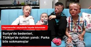 Suriye'deki Savaş Bedenlerini, Türkiye'deki Dışlanma Ruhlarını Yaktı