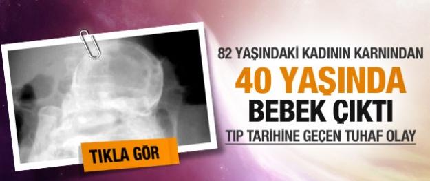 Tıp tarihine geçen tuhaf olay! 82 yaşındaki kadında 40 yıllık fetüs bulundu!
