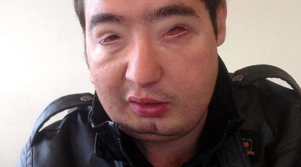 Turan Çolak 20 Ay Sonra Gözlüğünü Çikartti
