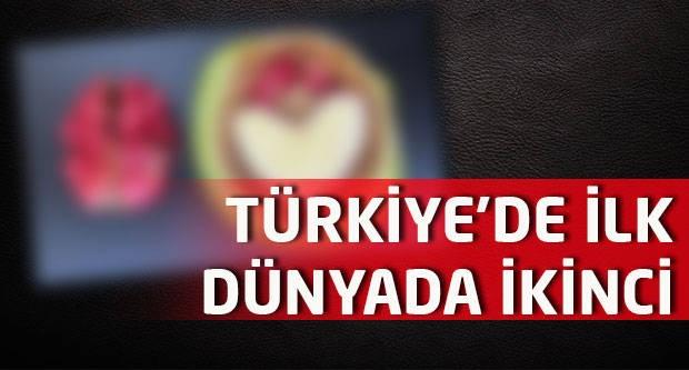 Türkiye'de ilk, dünyada ikinci!