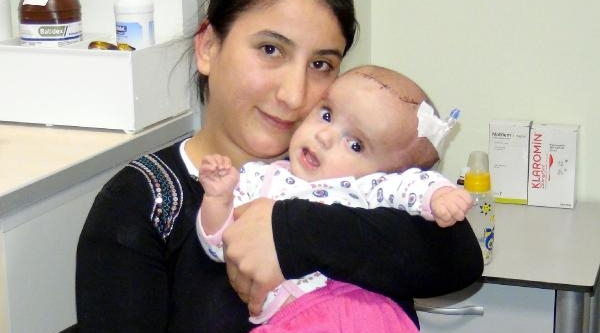 Üç Aylik Bebeğe Beyin Ameliyati