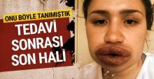 Türkiye onu dudaklarıyla tanımıştı! İşte son hali