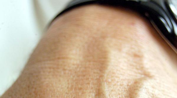 Uzm.dr.demirağ: Kkka, En Önem Halk Sağlığı Sorunlarından Biri