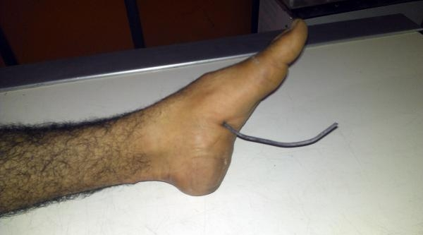 Yolda Yürürken Ayağına Demir Saplandı